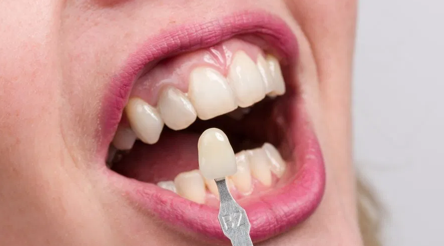 Side Effects And Risk Factors Of Dental Implants