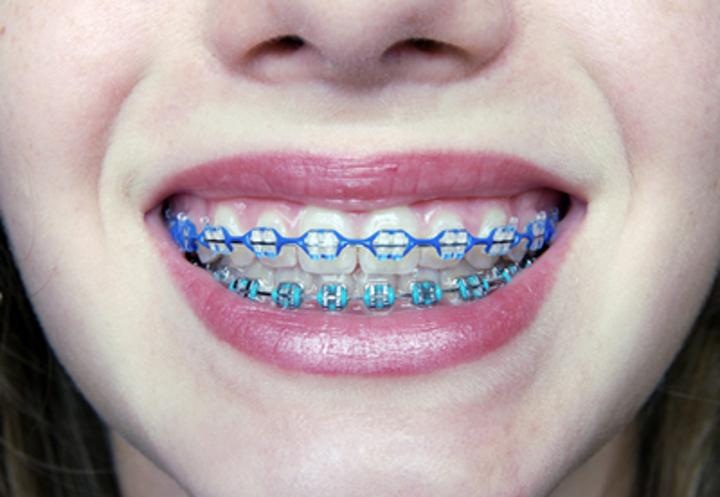 Commo-braces-3